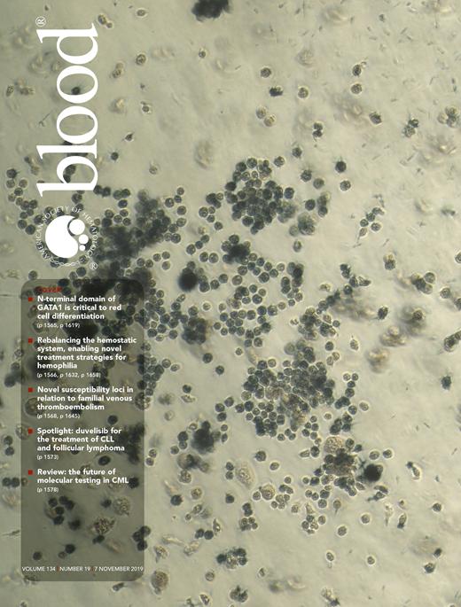 Targeting PN-1 to control bleeding in hemophilia