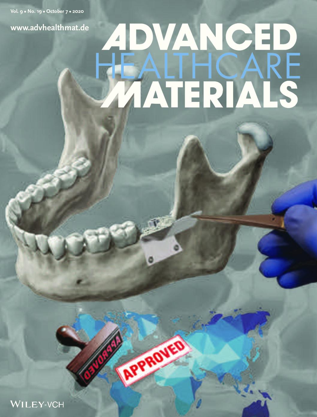 Membranes for Guided Bone Regeneration